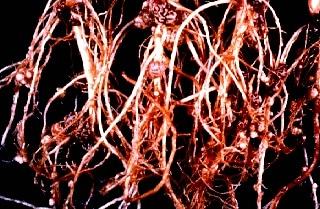 Le simbiosi e l'importanza degli inoculantiMICROBICI